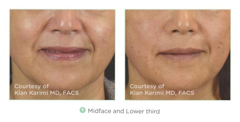novathreads-midface-lower-face-2