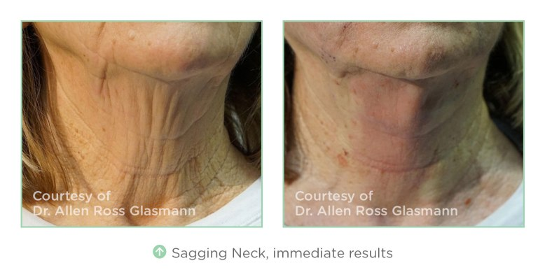 nt-before-after-sagging-neck